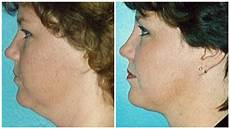 how to get rid of a chin 19 facts about chin