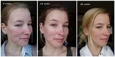 roaccutane progress 20 weeks just half way 3