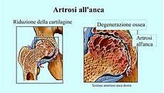 dolore parte interna ginocchio sinistro dolore all inguine destro o sinistro e gamba coscia
