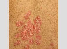 Psoriasis Rash Pictures Symptoms   Dorothee Padraig South