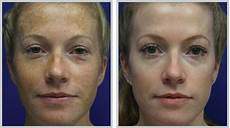 bbl treatments before after photos coyle institute
