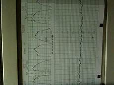 Contraction Timing Chart Contraction Chart