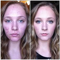 rndm select before and after make up