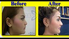 before after nose surgery rhinoplasty thailand