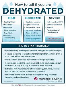 Dehydration Headache Location Chart Beat The Heat By Staying Hydrated Shine365 From