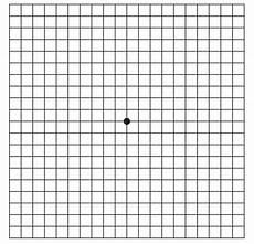 Amd Eye Chart Macroom Opticians
