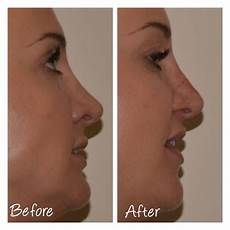 non surgical nose cosmetic courses