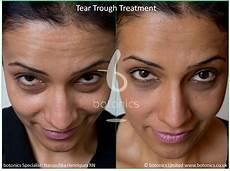 tear trough fillers before and after pictures botonics