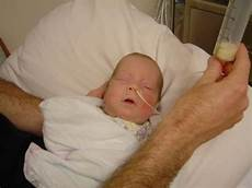 Gavage Feeding Preemie Beth April 2006