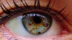 How To Get Light Brown Eyes Fast Get Lighter Eyes With Eye Freckles Fast Biokinesis