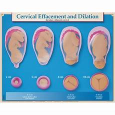 Centimeters Dilated Chart Amniotic Membrane Rupture Chart Childbirth Graphics