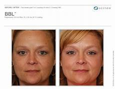 ipl laser for skin treatment laser treatment