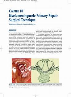 Myelomeningocele Repair Pdf Myelomeningocele Primary Repair Surgical Technique