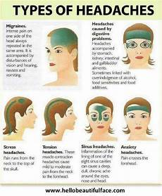 Dehydration Headache Location Chart Handy Charts To Help Deal With Migraines Health Babamail