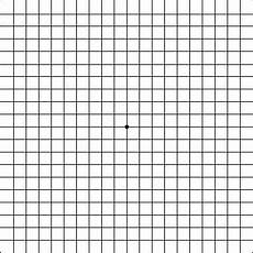 Amd Eye Chart Macular Degeneration Test How To Use The Amsler Grid
