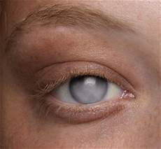 Lights Prosthetic Eyes Inc Prosthetic Eye For Cloudy Cornea Ocular Prosthetics Inc