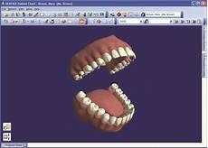 Dentrix Patient Chart Dental Charting Software And Patient Management Tools