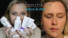 my rodan and fields unblemish experience before and