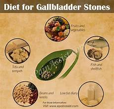 diet for gallbladder stones foods to include foods to