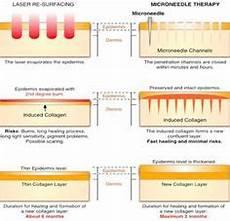 Micro Needling Depth Chart Dermapen Microneedling Microneedle Depth Chart Beautify