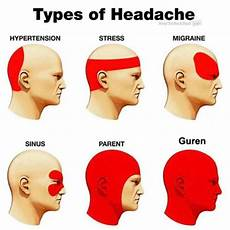 Dehydration Headache Location Chart Types Of Headaches Tumblr