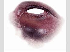Black eye eye bruise FreeToEdit
