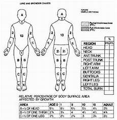 Burn Chart Body How Do You Calculate The Area Of A Burn