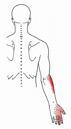 Subclavius The Trigger Point Amp Referred Guide