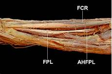 Fcr Tendon The Prevalence And Anatomical Characteristics Of The