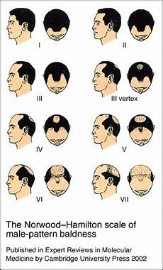 The Norwood Hamilton Scale Of Pattern Baldness Chart