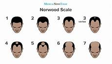 The Norwood Scale Understanding The Stages Of Balding