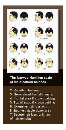 Causes Of Hair Loss In Men Alopecia Mhn Hair Restoration