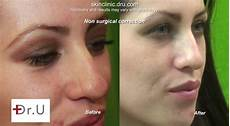 non surgical nose patient s results before after