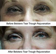 before and after pictures of belotero a dermal filler