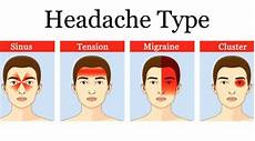 Dehydration Headache Location Chart S Health Blog Headache Types
