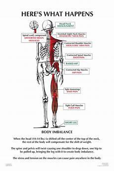 Back Diagnosis Chart Symptoms Dr Dennis W Harding Chiropractor Upper