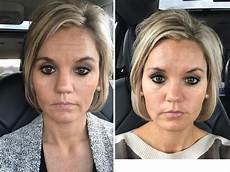botox fillers before and after a cup of sass