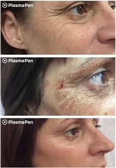 plasma pen fibroblast therapy skin care by design