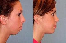 chin filler derma models