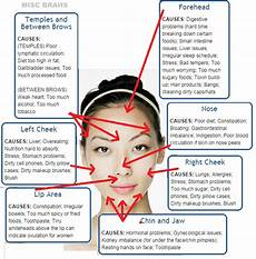 Chinese Acne Face Chart Pretty Accurate Acne Face Map Pic Bodybuilding Com Forums