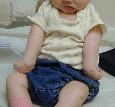 Erb Palsy Erb S Palsy Medical Malpractice Lawsuits Parker Waichman Llp