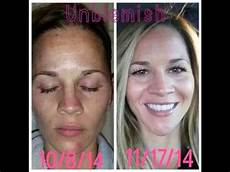 rodan and fields unblemish before and after
