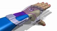 3d Printed Prosthetic Hand Design Next Generation Of 3d Printed Prosthetic Hands The Flexy
