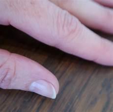 styrke negle f 229 neglene i form efter vinteren qland