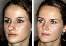 dr steven denenberg s plastic surgery before and