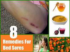 8 home remedies for bed sores treatments cure