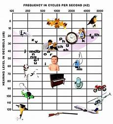 Hearing Loss Frequency Chart Types Of Deafness Ears Amp Hearing Uk