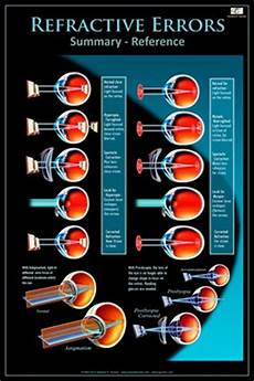 Refractive Error Chart Eye Wall Charts Refractive Errors Summary Referenc