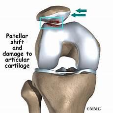 Patella Femoral Syndrome Patellofemoral Problems Eorthopod Com