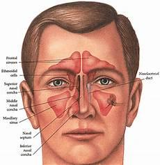 Sinus Anatomy What Are Sinuses Dr Joseph B Jacobs New York City